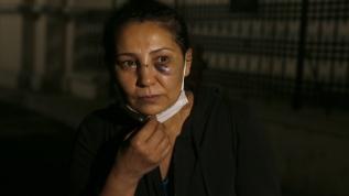 Serviste iş arkadaşının saldırısına uğradı