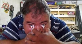 Burnundan aldığı sütü gözünden fışkırtan adam görenleri şaşırtıyor